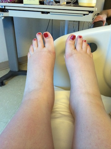 post partum swollen feet